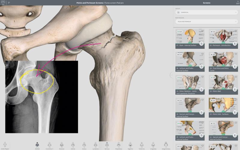 Complete Anatomy 2018 3.4.0 3D医学参考软件